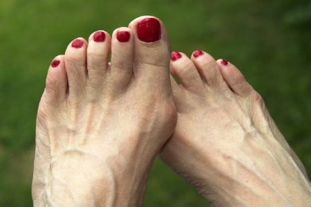 косточки на ногах
