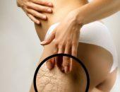 Миниатюра к статье Как сделать кожу упругой?