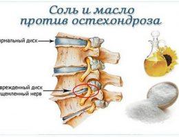 Миниатюра к статье Соль и масло против остеохондроза